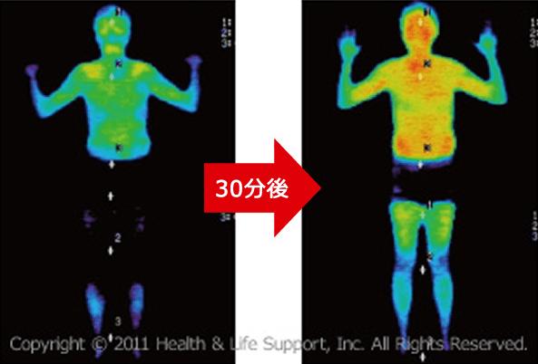 体表面の皮膚温度の上昇